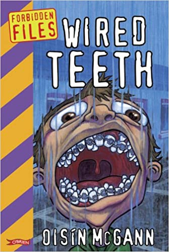 Wired Teeth Book Cover